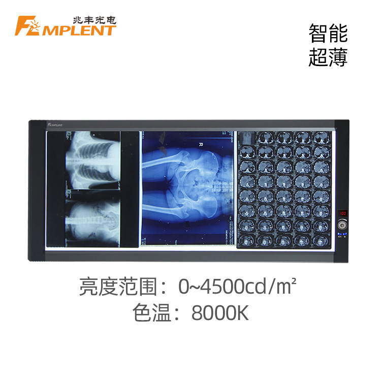 兆丰 ZG-3B 超薄液晶LED三联观片灯
