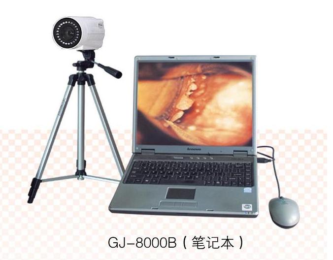数码电子阴道镜(笔记本)GJ-8000B 型