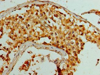 华美生物多克隆抗体KDM1A Antibody