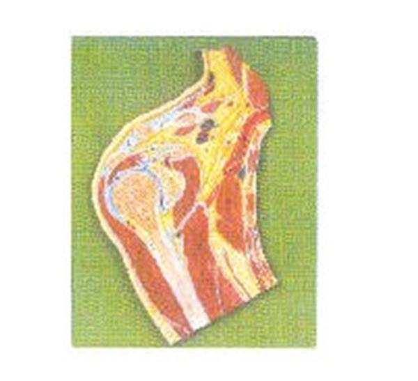 GD/A11202肩关节剖面模型(尺寸:自然大,固定在基板上