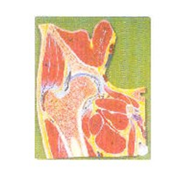 GD/A11205髋关节剖面模型(尺寸:自然大,固定在基板上