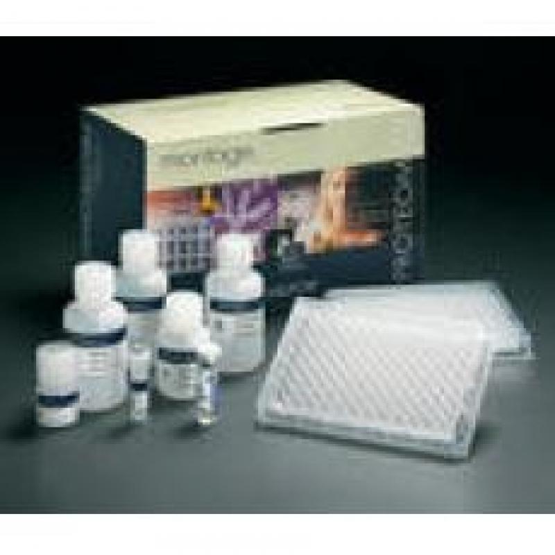 睾丸酮试剂盒(放免)