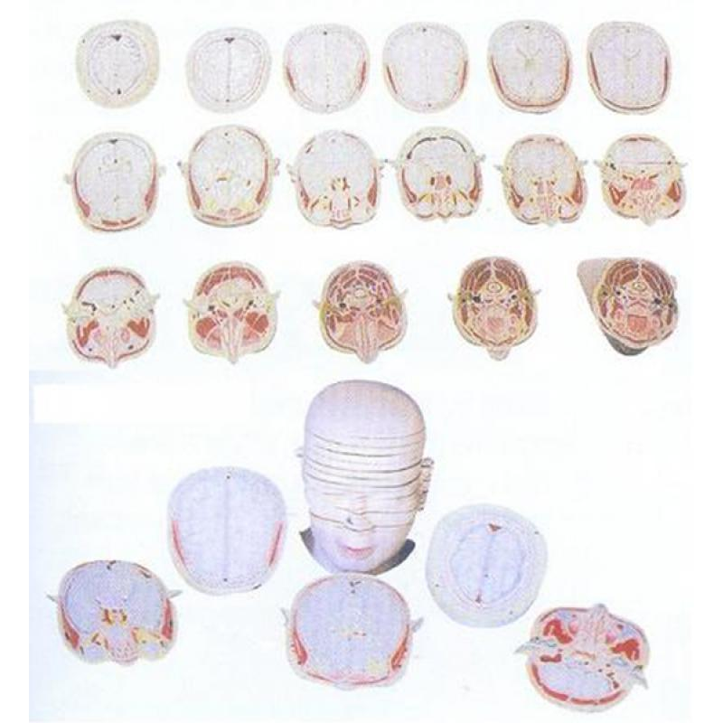 GD/A30001人体头颈部横切面断层解剖模型(17片,每片约19mm,进口PVC材料)