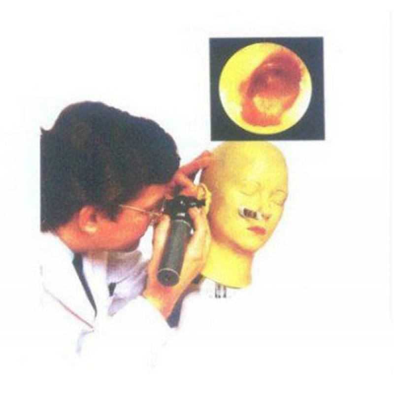 LV41耳诊断模型(12种正常/病变的鼓膜)
