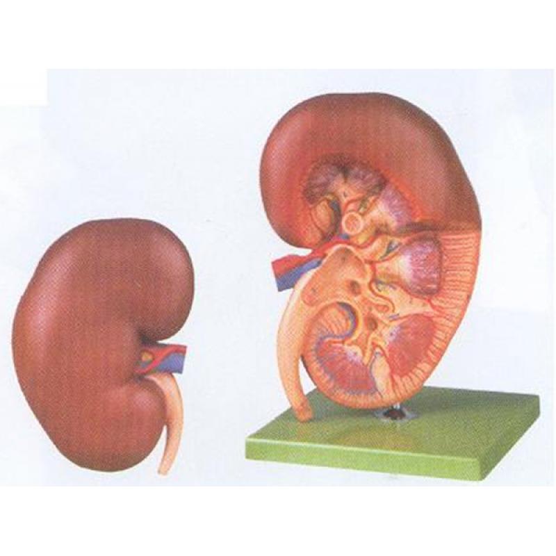 GD/A14005肾脏解剖放大模型(尺寸:放大3倍,高41cm,宽19cm,厚18cm 进口pvc材料)
