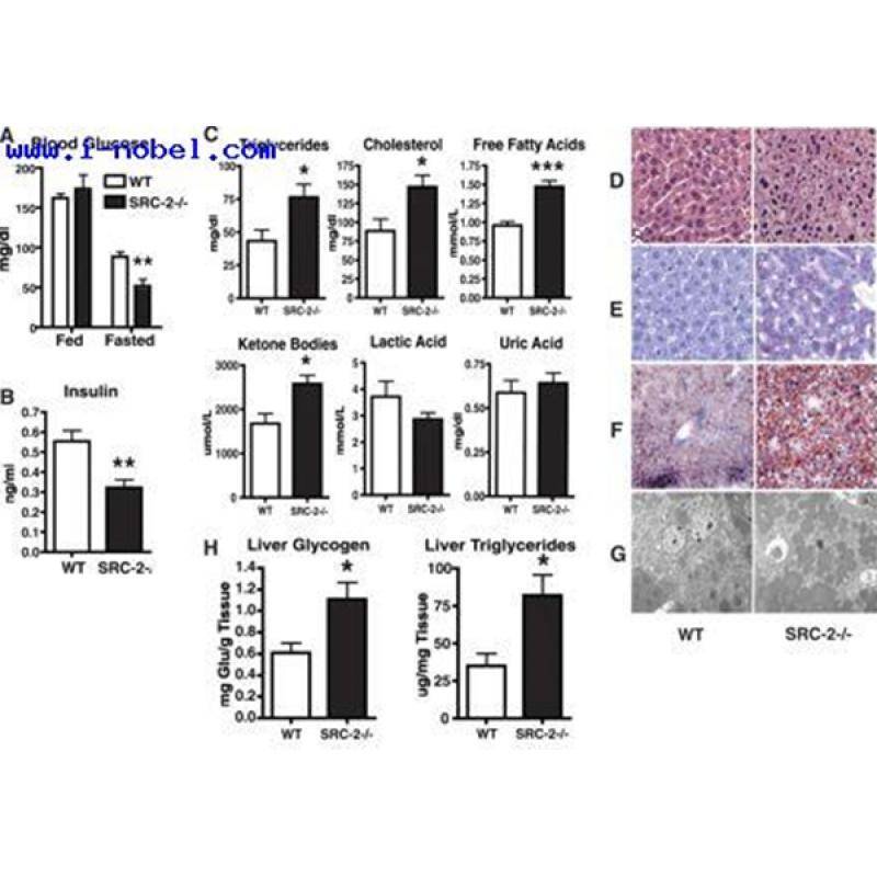 Santa Cruz G6Pase-α(G-20)抗体200µg/ml