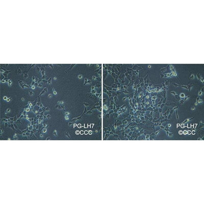 PG-LH7 人肺巨细胞癌的低转移亚系