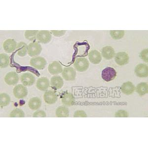 血液锥体虫涂片