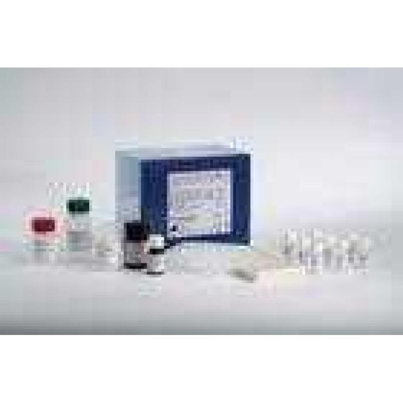 人血管生成素1 ELISA 试剂盒