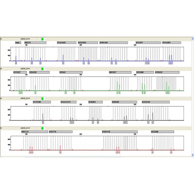 AGCU 免提取型17+1 STR荧光检测试剂盒