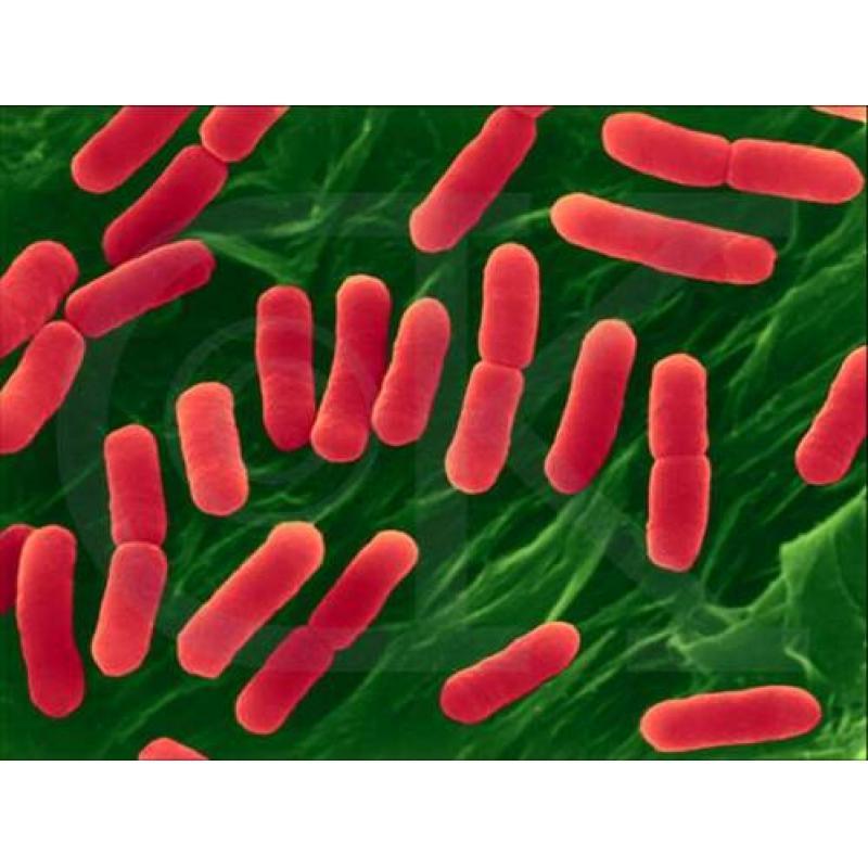铜绿假单胞杆菌(绿脓杆菌) ATCC 27853