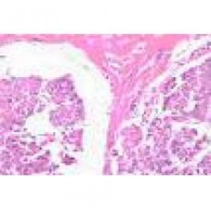 慢性胃溃疡切片