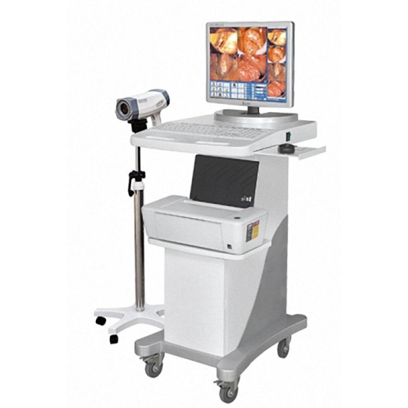 亿康EK-6000C型 数码电子阴道镜(标准型)