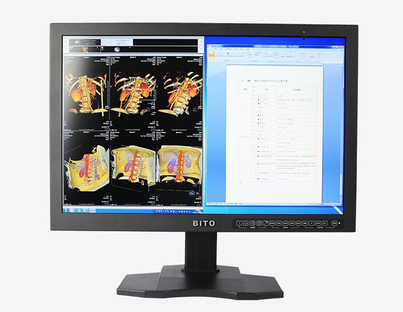 BITO 比拓医用彩色显示器 医用影像诊断显示器 医用彩色阅片显示器 医用监视器 4MP一体化双屏显示器 30英寸
