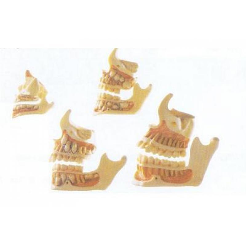 牙与颌骨的发育模型