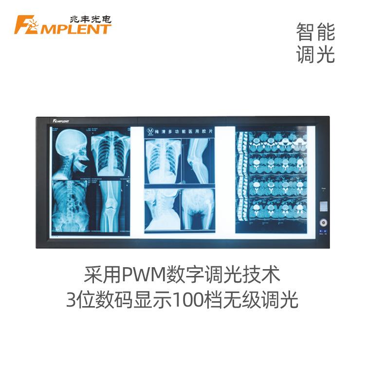 兆丰 ZG-3  超高亮智能调光LED 三联观片灯(背发光)