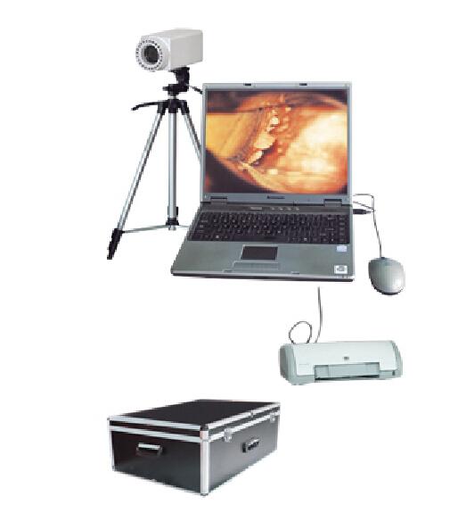 联创LC-9100B 笔记本数码电子阴道镜