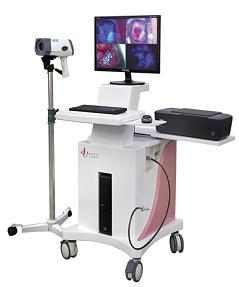 联创LC-9100C荧光数码电子阴道镜80万像素
