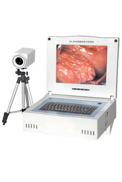 联创LC-9100B便携数码电子阴道镜80万像素